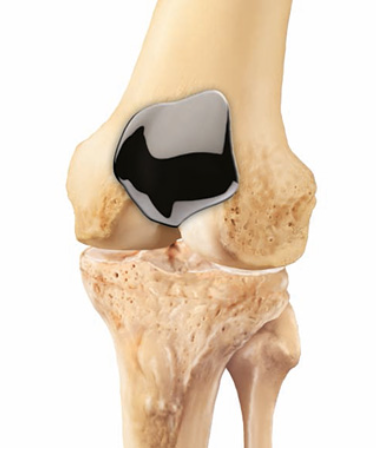 Patellofemoral Resurfacing