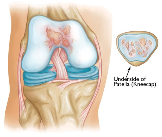 Patellofemoral Resurfacing 3