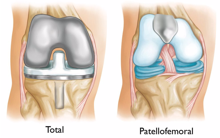 Patellofemoral Resurfacing 2