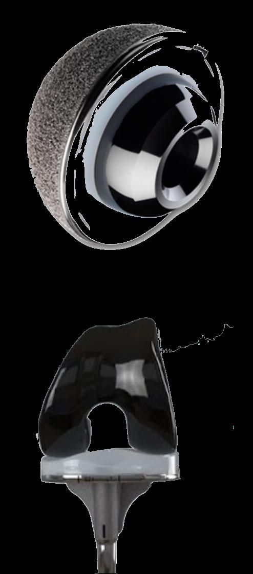 Oxidized Zirconium Femoral component