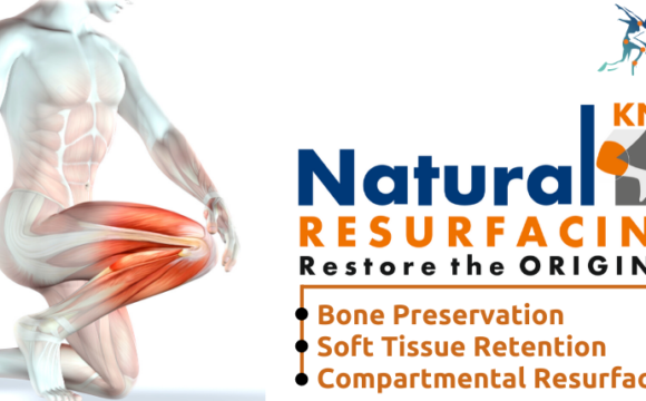 Natural Knee Resurfacing –  NKR