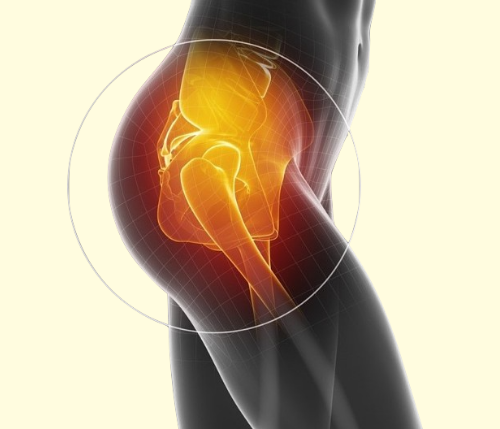 Recovery after Hip Replacement