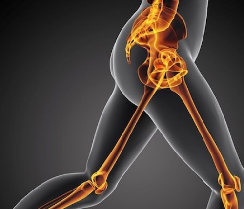 How Long does a Hip Replacement Last Today?