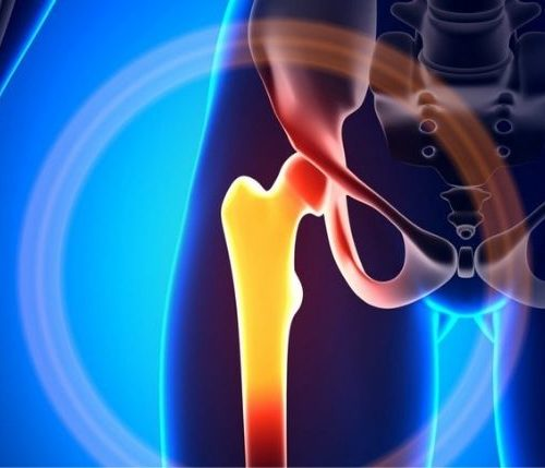 Mobility after Hip  Replacement